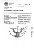 Патент 1718337 Ротор асинхронной электрической машины