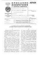 Патент 827625 Прибор для определения содержаниядлинных и коротких волокон b трепаномльне