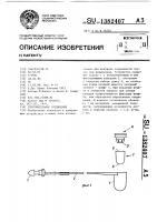 Патент 1382407 Уплотнительное соединение