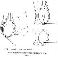 Патент 2561298 Способ профилактики заворота яичка