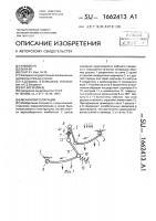 Патент 1662413 Механизм сепарации