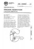 Патент 1400997 Датчик контроля движения нити